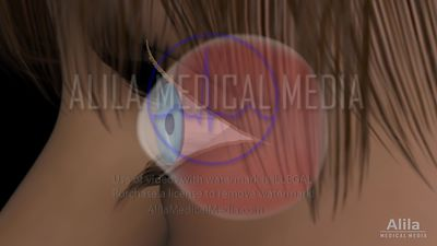Eye disease - Cataract video