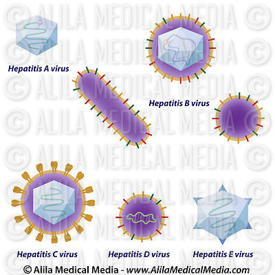 Hepatitis viruses comparison, unlabeled.