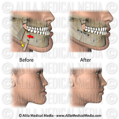 Corrective jaw surgery for prognathism