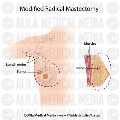 Modified radical mastectomy labeled