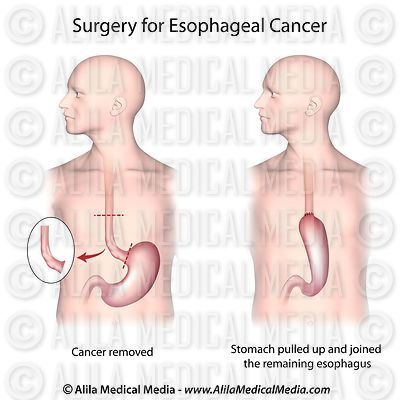 Surgery for treatment of esophageal cancer