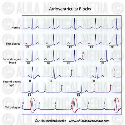 ECGs do bloco auriculoventricular