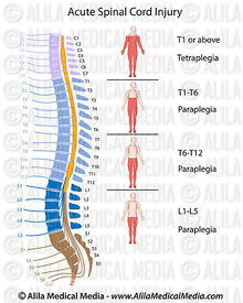 Spinal cord injury levels diagram.