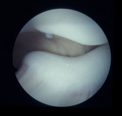 Malaligned patella