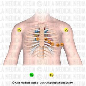 Placement of electrodes for 12-lead ECG