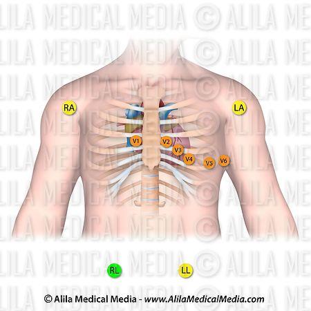 Alila Medical Media Colocación De Electrodos Para Ecg De 12 Derivaciones Ilustración Médica