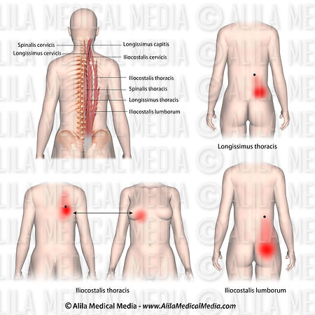 Trigger points and referred pain patterns for the erector spinae muscle group.