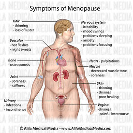 Menopause symptoms, labeled.