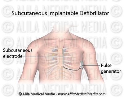 Subcutaneous implantable defibrillator