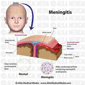 Meningitis labeled.