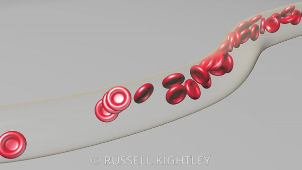 Red-Blood-Cells-Animation-FHD-Russell-Kightley