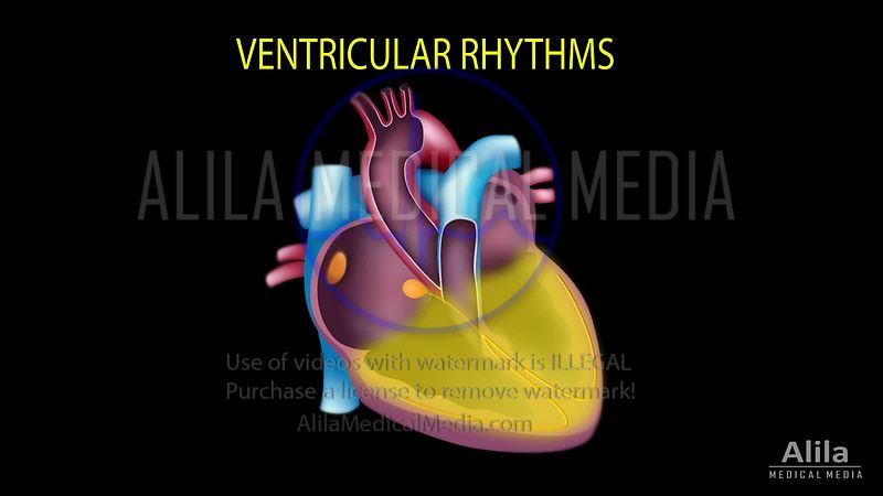 Cardiac arrhythmias - VENTRICULAR rhythms ONLY