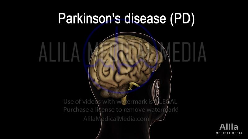Parkinson's disease NARRATED animation