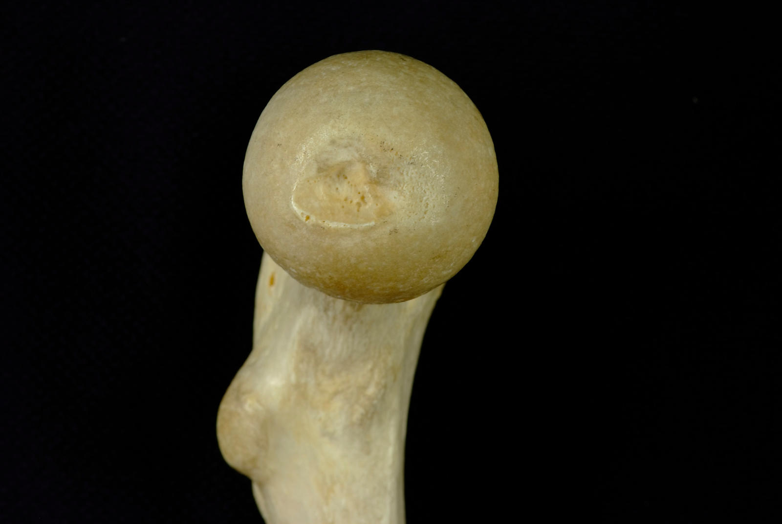 Head of femur showing attachment for ligamentum teres