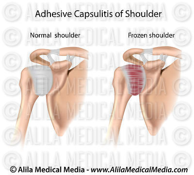 Adhesive capsulitis of shoulder diagram.