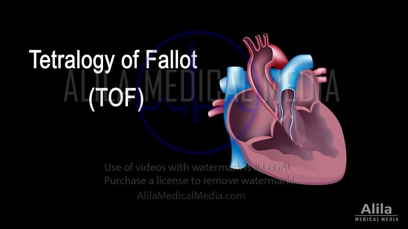 Tetralogy of Fallot NARRATED animation