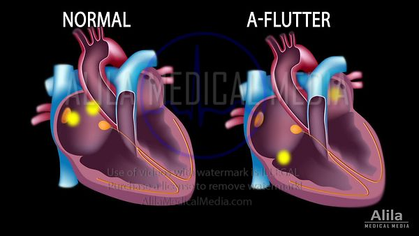 Flutter auricular vs ritmo sinusal normal