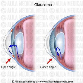 Glaucoma closed angle vs open angle