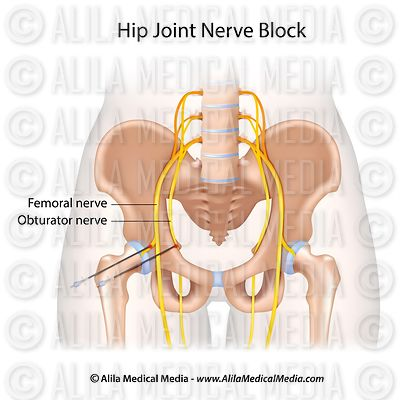 Hip joint nerve block