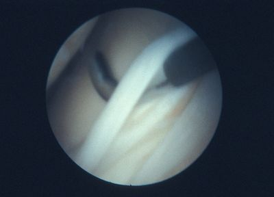 Split meniscus longitudinal tear