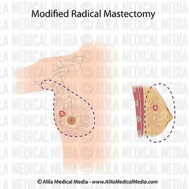 Procedimento de mastectomia radical modificada