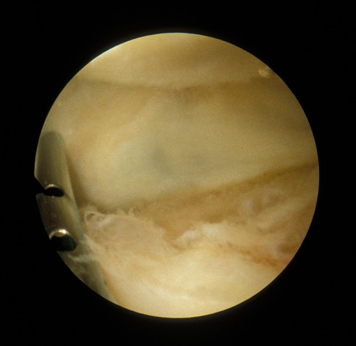 Suprapatellar plica viewed from inferior portal