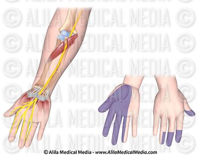 Median nerve unlabeled
