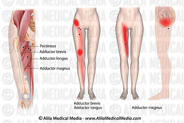 Trigger point and referred pain for hip adductors