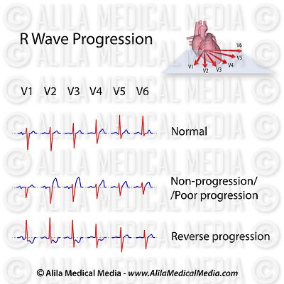 R wave progression in chest leads