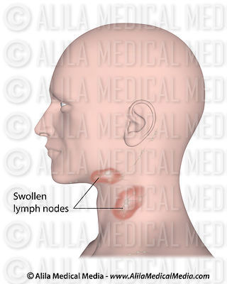 Red swollen lymph nodes in lymphadentis, labeled.