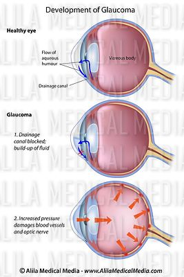 Stages of glaucoma, a common eye disease