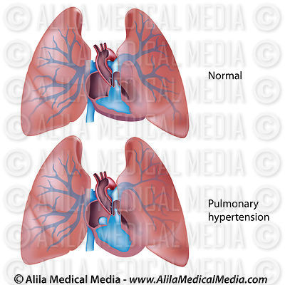 Hypertension pulmonaire