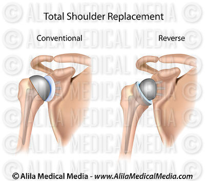 Conventional and reverse total shoulder replacement