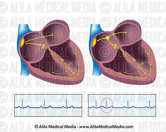 Premature atrial contraction, PAC, unlabeled