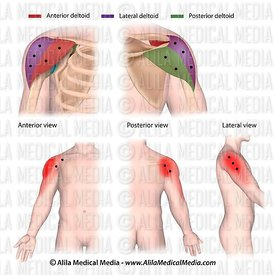 Trigger points and referred pain patterns of the deltoid