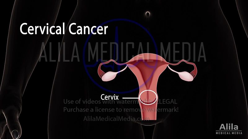 Cervical cancer, HPV and Pap test NARRATED animation