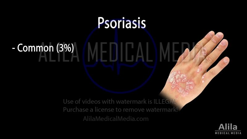 Psoriasis NARRATED animation