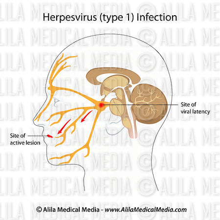 Infection par herpèsvirus, boutons de fièvre