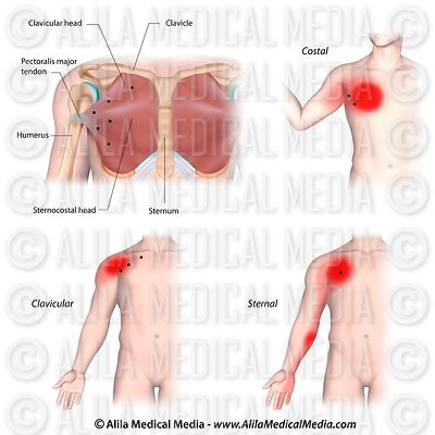 Trigger points and referred pain for the pectoralis major muscle