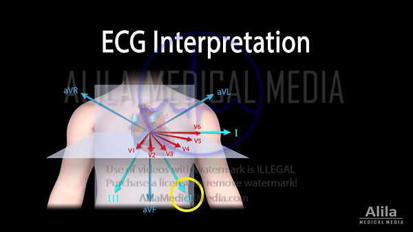 ECG Reading NARRATED animation, PART 1