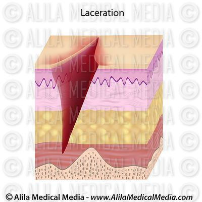 Laceration drawing.