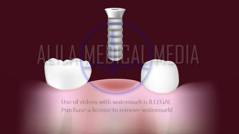 Dental implant procedure video