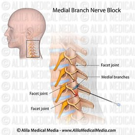 Cervical medial branch block.
