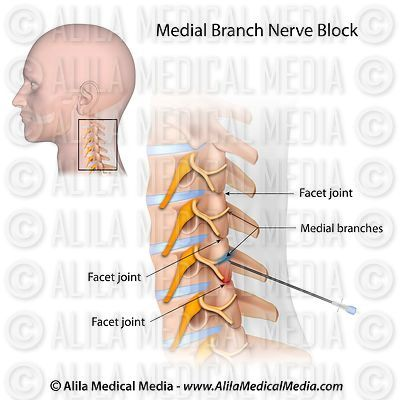 Bloco do ramo medial cervical.