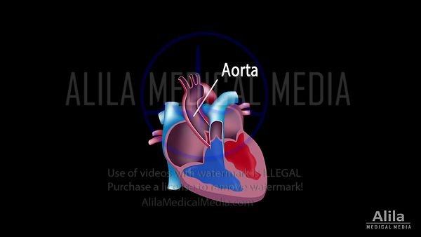 Coronary circulation, coronary artery disease, and revascularization NARRATED animation.