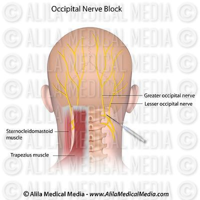 Occipital Nerve Block.