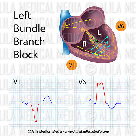 Left bundle branch blocks (LBBB)