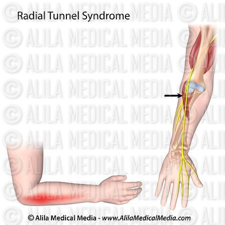 Radial tunnel syndrome unlabeled.