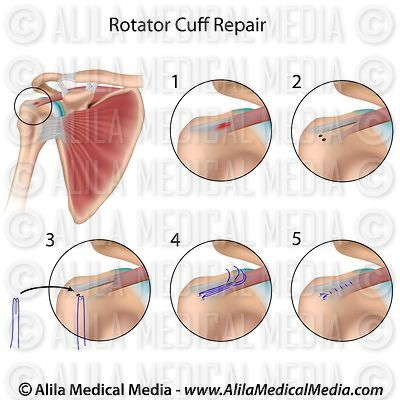 Rotator cuff repair diagram.