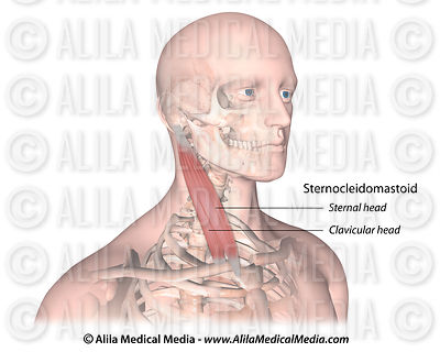 Muscle sternocleidomastoïde